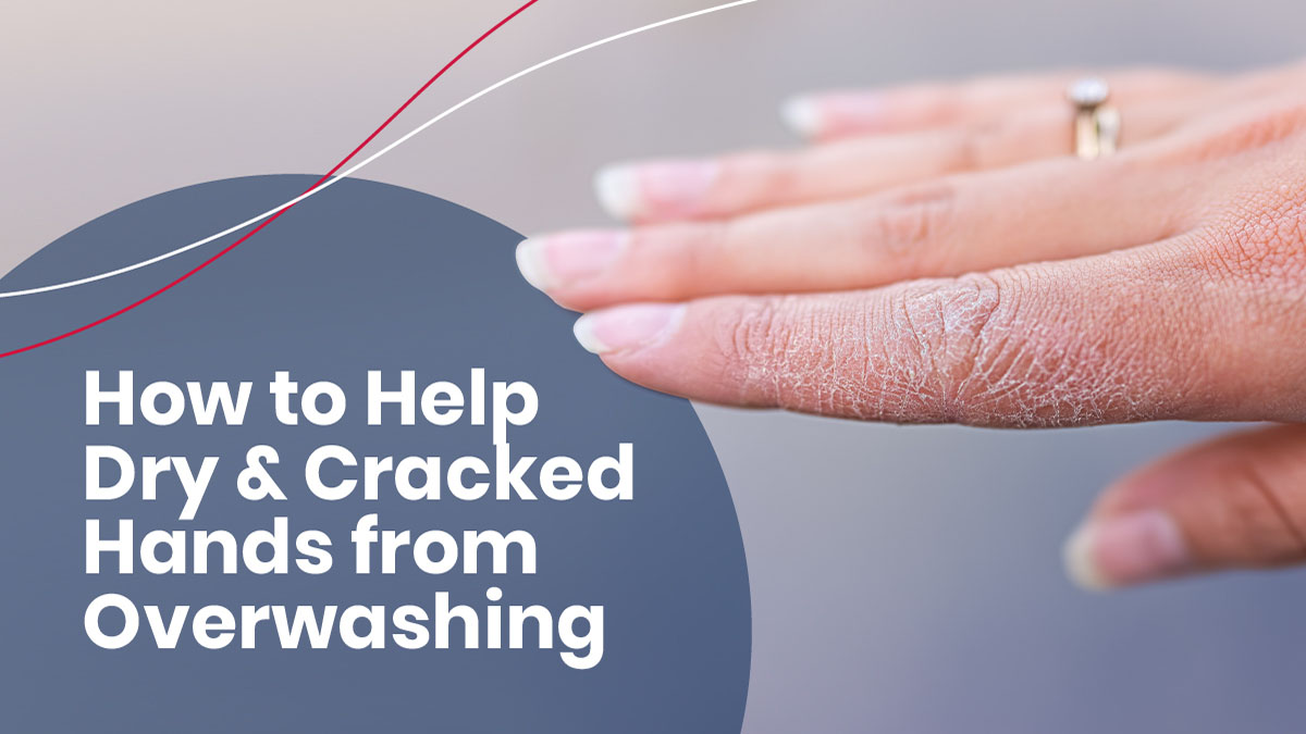 Dry cracked hands from overwashing