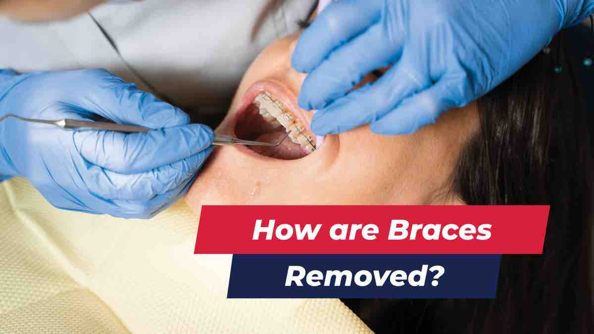 Patient getting braces removed
