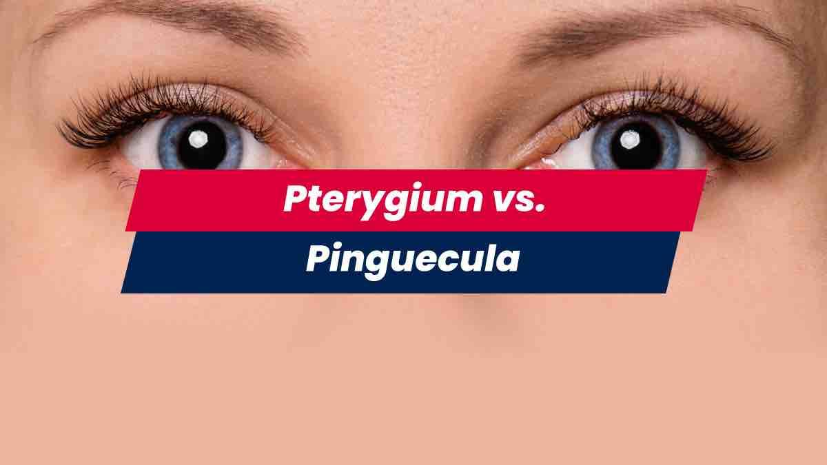 Woman's eyes showing pterygium vs pinguecula