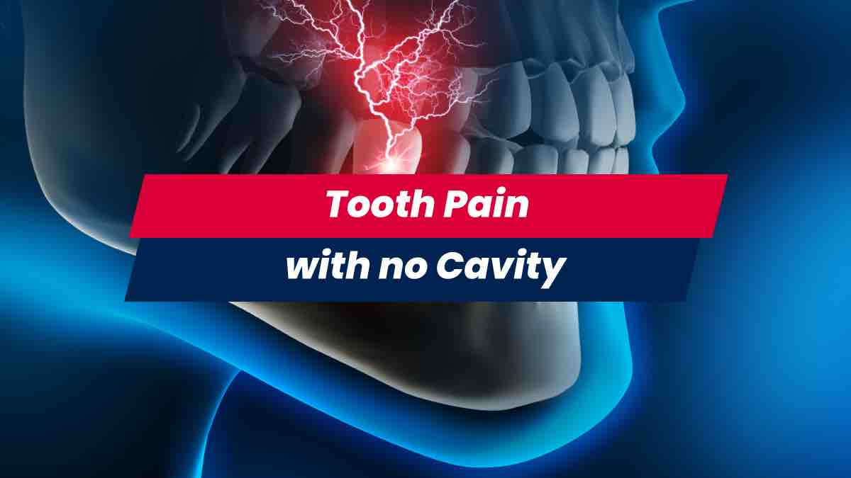 Tooth pain with no cavity present and nerve roots inflamed