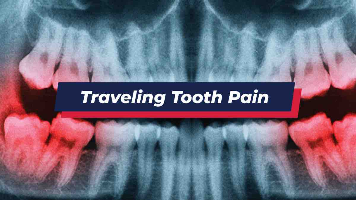X-ray showing traveling tooth pain