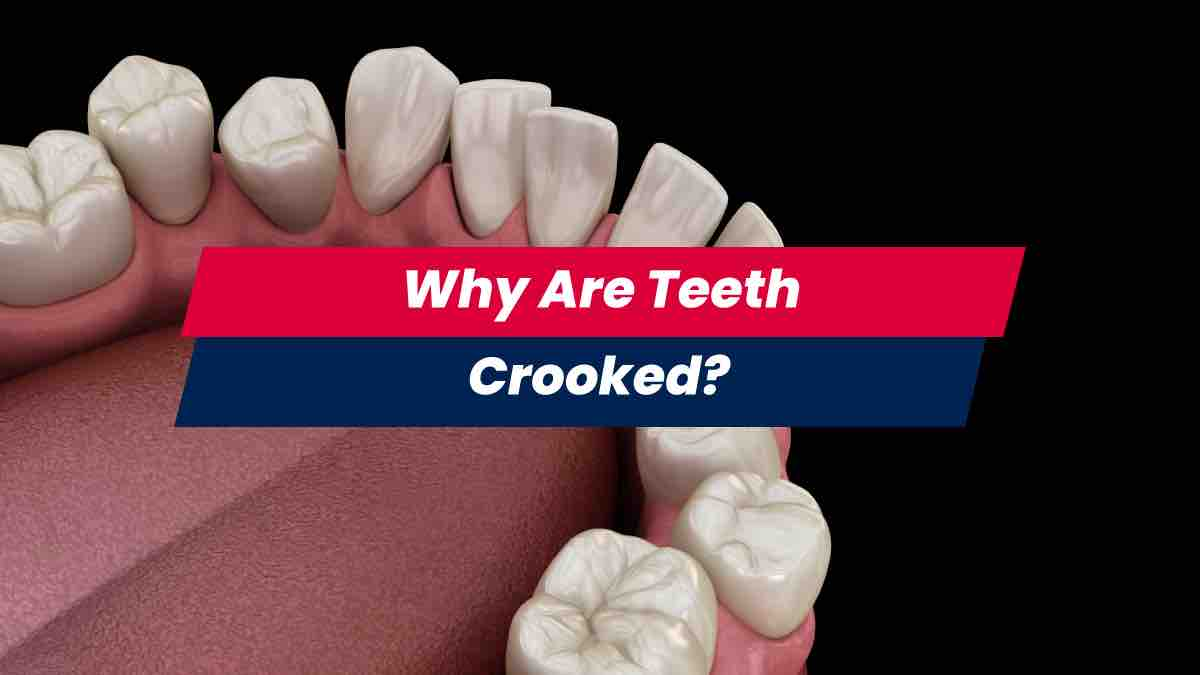 Rendered image of crooked teeth view from above